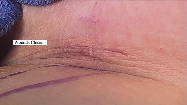 Sports Hernia Surgical Repair Photo Gallery - Sports ...