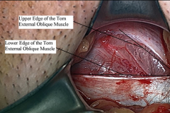 Male Left Sports Hernia Repair