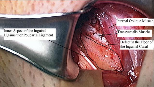 Photos of Sports Hernia Surgery - Sports Hernia Specialist