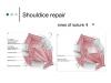 shouldice-repair