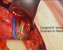 Photo-5-Epigastric-Vessels-Scarred-to-Mesh