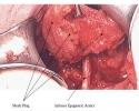 Epigastric Artery