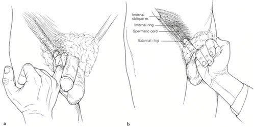 exam photo 2 another important part of the examination is palpation external oblique as it runs parallel to inguinal ligament often a defect can be palpated physical sports hernia spec