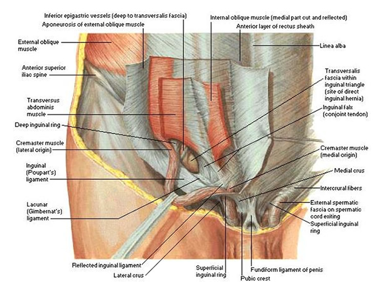 Types of Inguinal Hernia - Sports Hernia Specialist