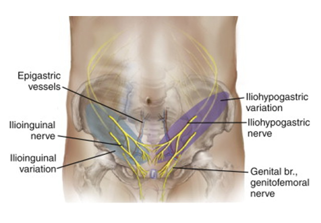 Muscle and Nerves - Sports Hernia Specialist